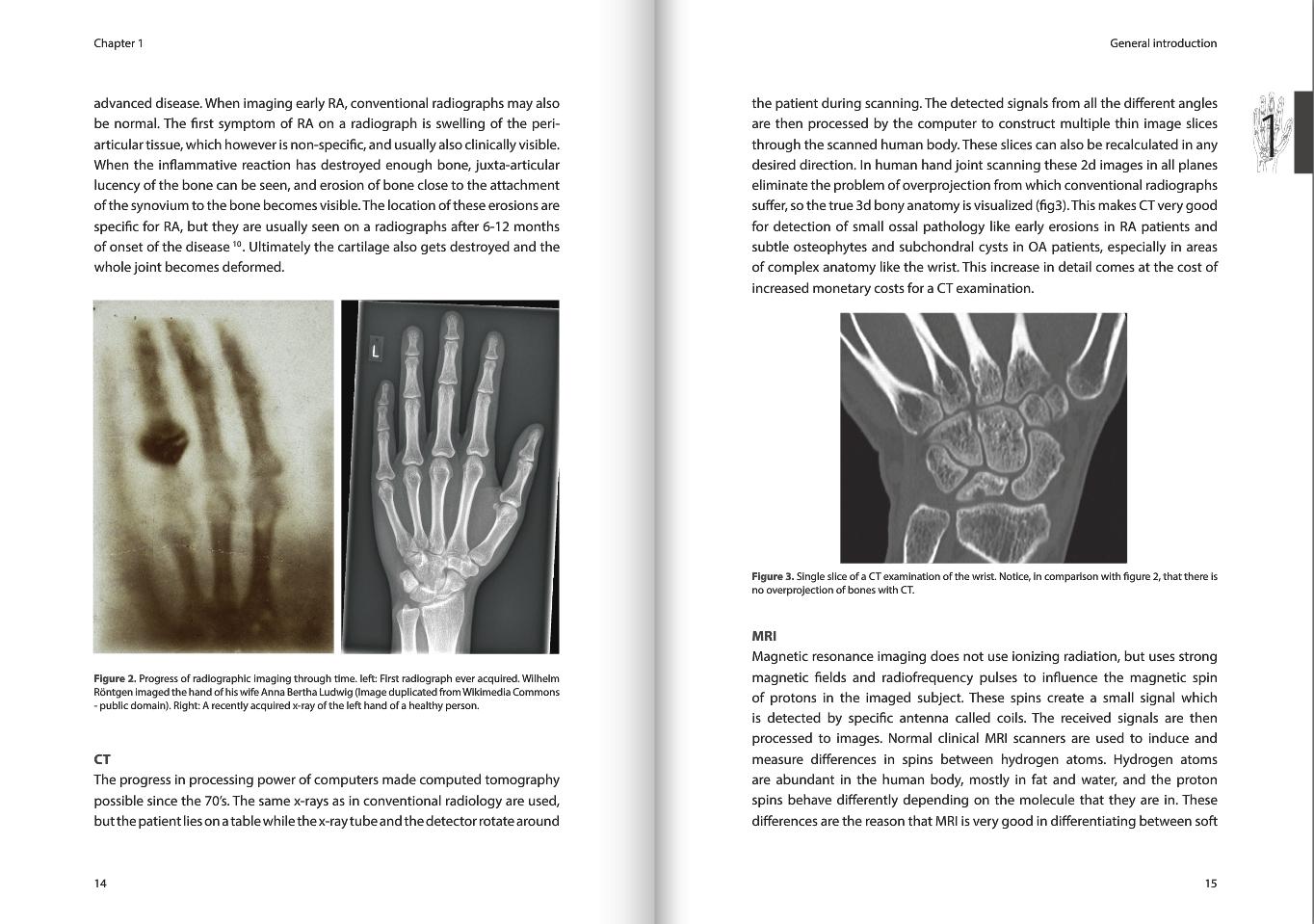 Arthritis dissertation